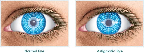 Things to Know About Astigmatism