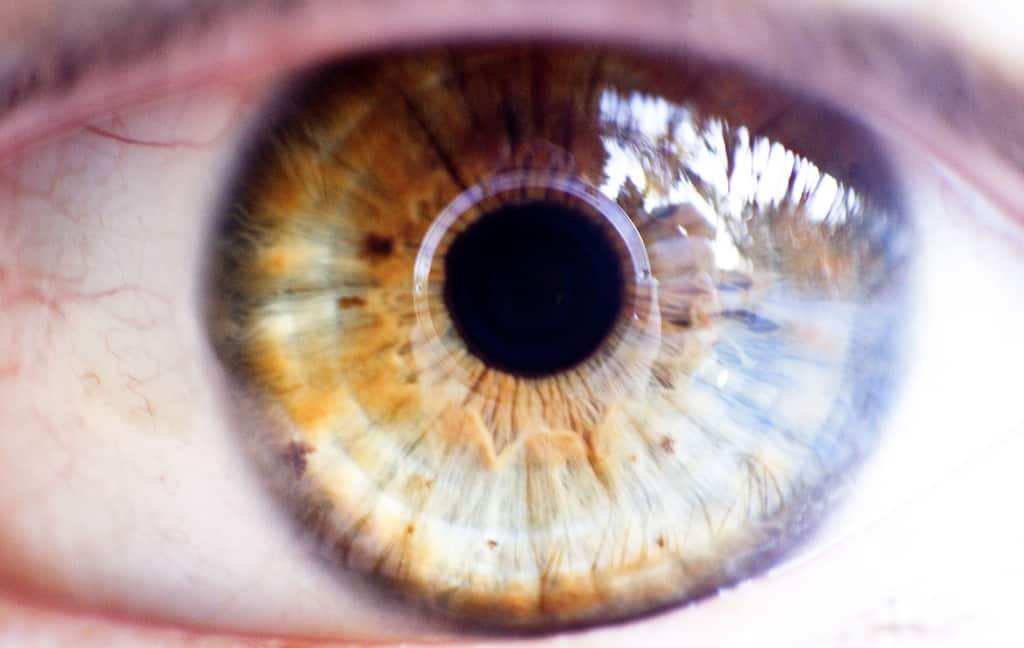 Why Aging Affects Your Eyesight