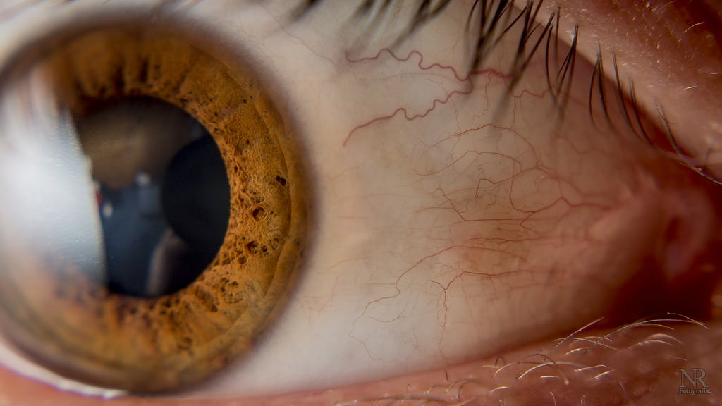 Cataracts – A Natural Result of Aging