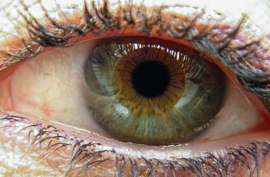 Being Born With Vision Problems
