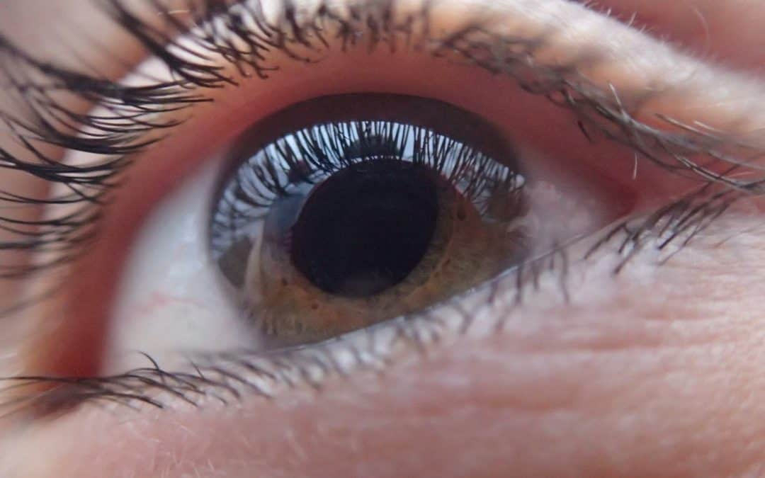 What Happens When Eyelashes Get Into Your Eye?