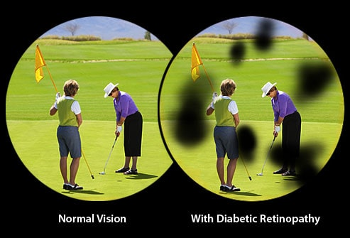 What You Should Know about Diabetes and Your Vision