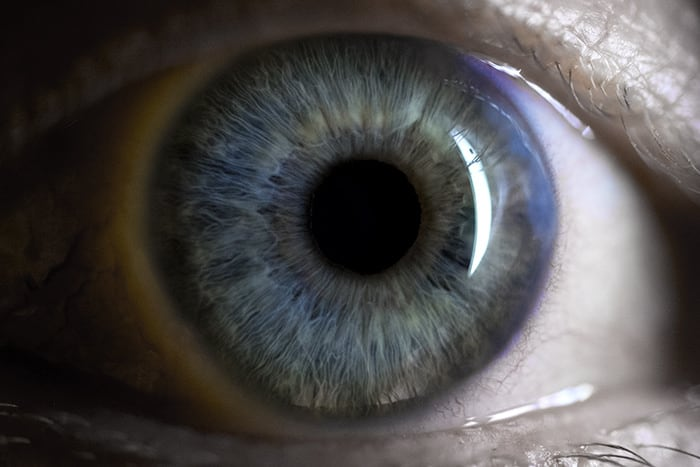 What is Ocular Surface Inflammation?