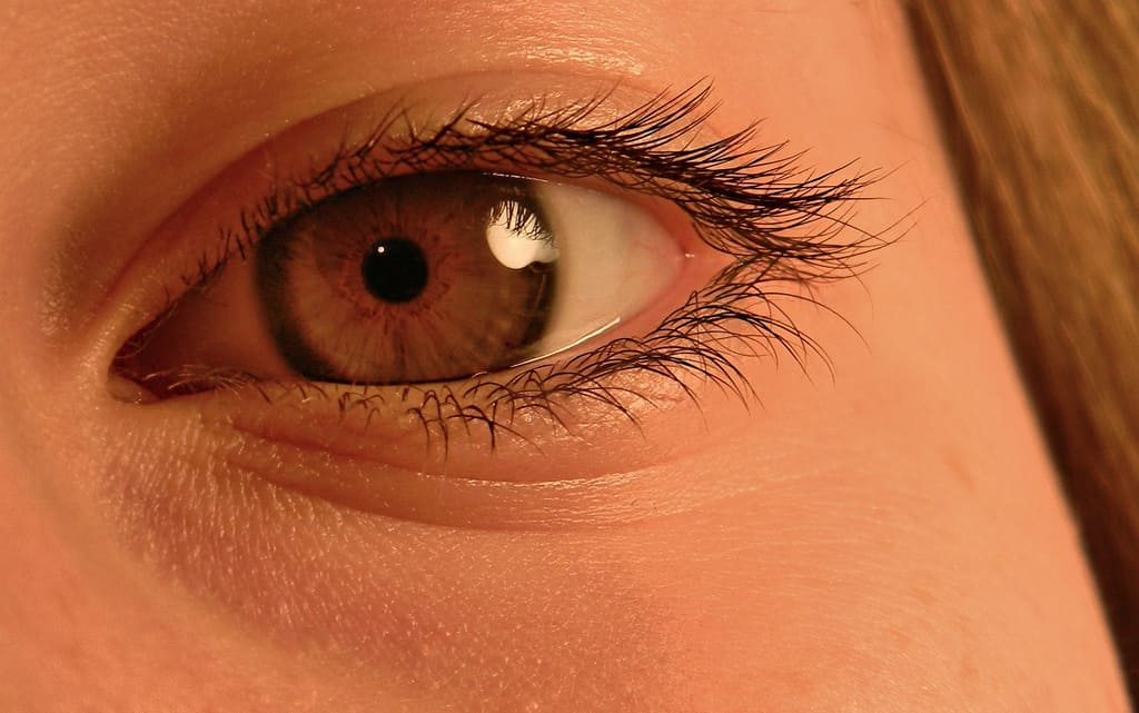 Learning About Subconjunctival Hemorrhage