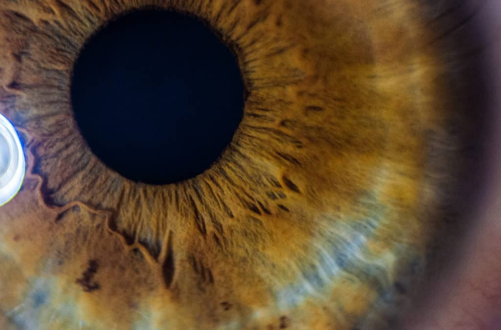 Exploring Nearsightedness in Adults